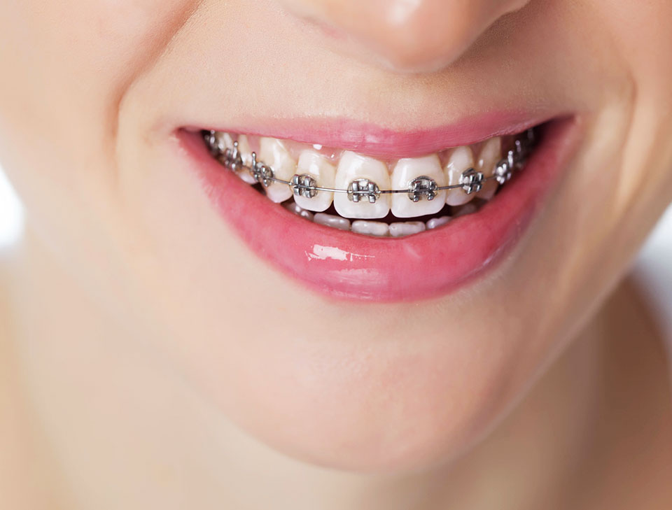 How much are adult teeth braces
